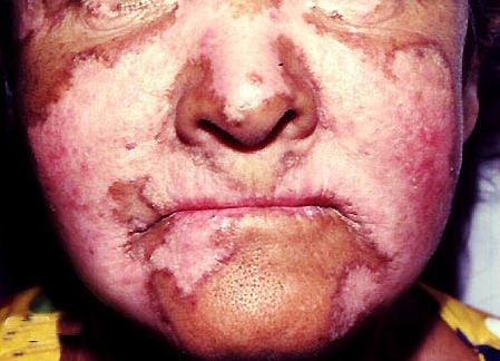 Penyakit Lupus Photos Penyakit Lupus